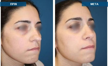 Διαφραγματορινοπλαστική: Η εγχείρηση του ρινικού διαφράγματος και η ρινοπλαστική συνιστάται να πραγματοποιούνται ταυτόχρονα, διότι το ρινικό διάφραγμα και η μύτη αποτελούν μια ενιαία χειρουργική οντότητα.