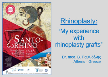 "ANAKOINΩΣΗ: ""H εμπειρία μου με τα αυτομοσχεύματα στη ρινοπλαστική"" είναι το θέμα της ομιλίας του Dr. med. B. Παυλιδέλη, στο Διεθνές Συνέδριο SANTO-RHINO, Sinus, Skull Base and Rhinoplasty Workshop, Σαντορίνη 16-18 Σεπτεμβρίου 2016"