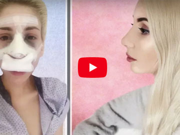 Video: Ρινοπλαστική: Η Φαίη - GirlsNextDoor περιγράφει βήμα βήμα την εμπειρία της από την πλαστική στη μύτη της, Δεκέμβριος 2017.